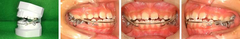 むし歯治療(保険診療)