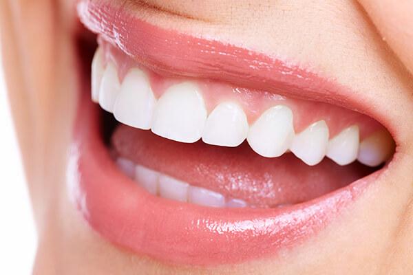 こだわり2 白く美しい歯と最高の笑顔を叶えるホワイトニング