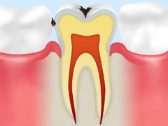 エナメル質のむし歯【C1】