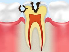 象牙質のむし歯【C2】