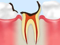 歯根に達したむし歯【C4】