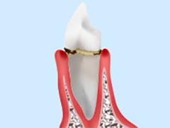 段階2:軽度歯周炎