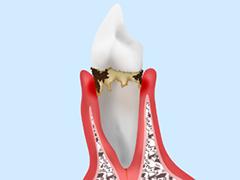 段階3:中等度歯周炎