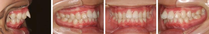 上顎前突症例3 治療前