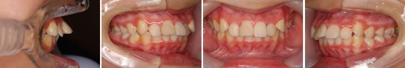 上顎前突症例5 治療前