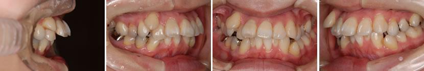 上顎前突症例6 治療前