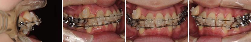 上顎前突症例6 治療中