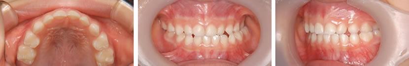 乳歯列期臼歯部交叉咬合症例 治療前