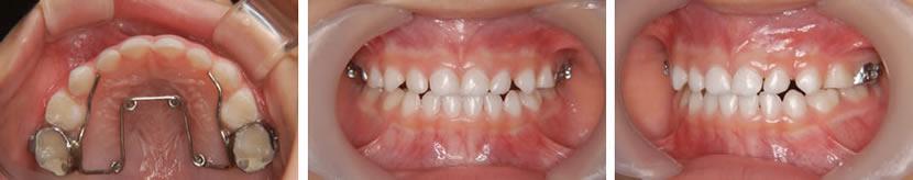 乳歯列期臼歯部交叉咬合症例 治療中