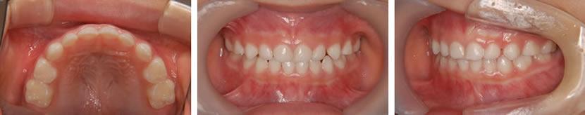 乳歯列期臼歯部交叉咬合症例 治療後