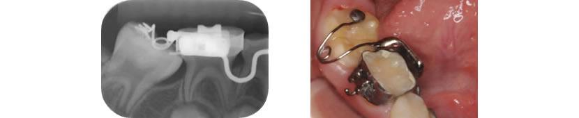 下顎右側第一大臼歯エクトピック症例 治療中