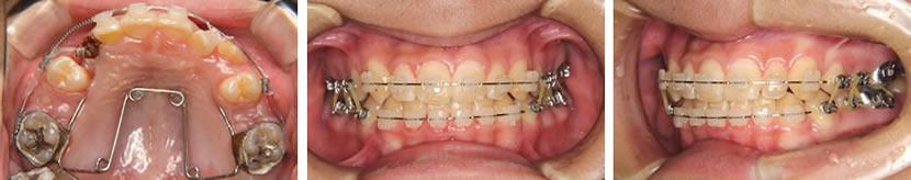 上顎犬歯の埋伏を認める叢生症例 治療中