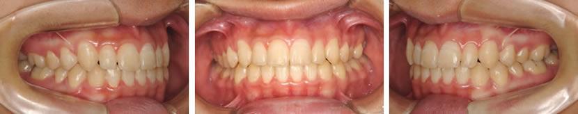上顎犬歯の埋伏を認める叢生症例 治療後