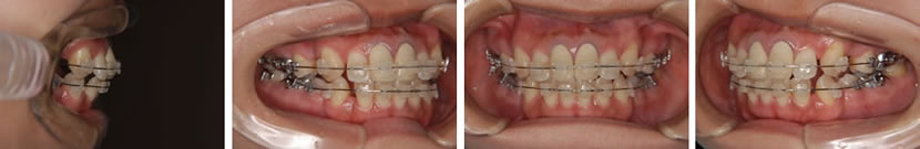 上下顎前突ならびに開咬症例 治療中