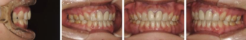 上下顎前突ならびに開咬症例 治療前