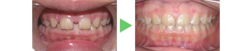 上顎両側側切歯先天欠如症例 治療前と治療後