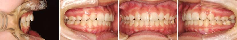 上顎両側側切歯先天欠如症例 治療前