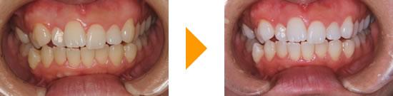 イシタニ小児・矯正歯科クリニック ホワイトニング実例