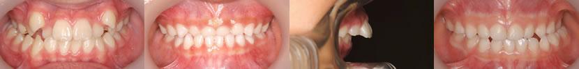 イシタニ小児・矯正歯科クリニック 矯正歯科治療