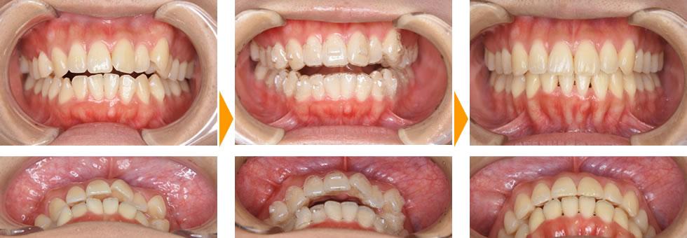 インビザライン治療例 イシタニ小児・矯正歯科クリニック