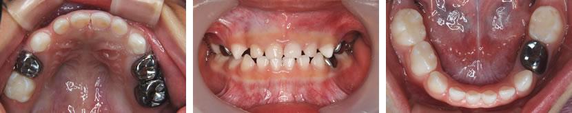 4歳男児(多数歯に及ぶ乳歯のむし歯) 治療後