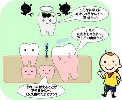 保隙(ほげき)治療 乳歯が早く抜けてしまったとき